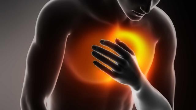 Congestive-Heart